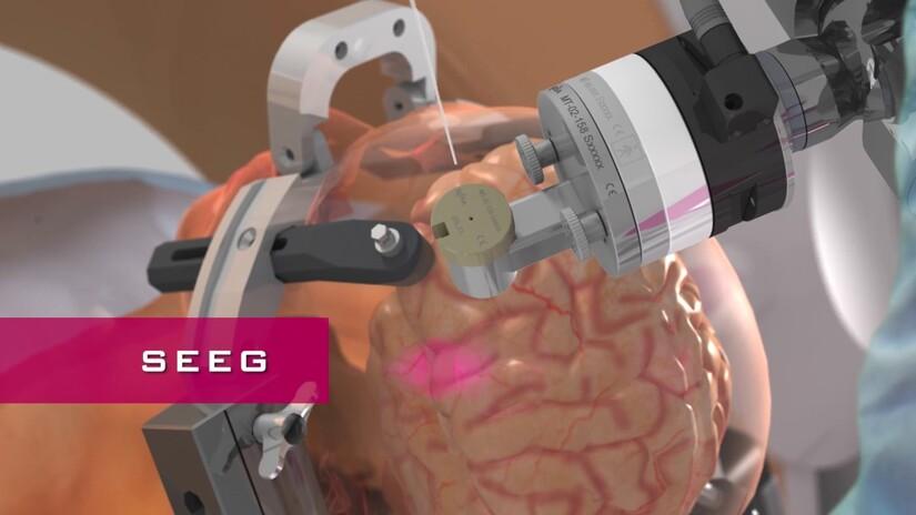Bồi thường 550 bệnh nhân của Robot Rosa ở BV Bạch Mai thế nào?