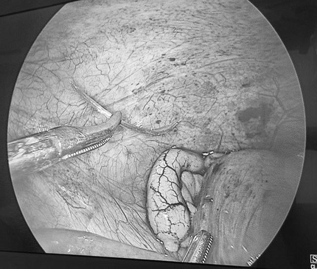 Mảnh xương cá dài 2,5cm đâm thủng ruột non người đàn ông