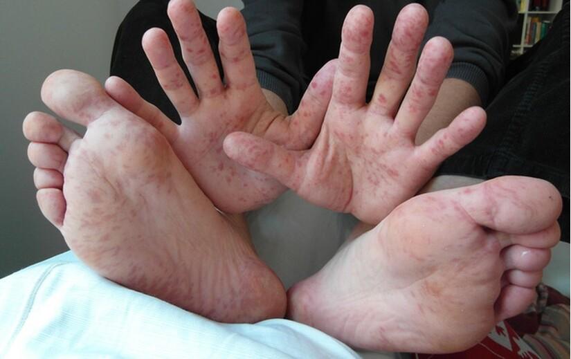 TP.HCM ghi nhận 640 ca mắc tay chân miệng chỉ trong một tuần