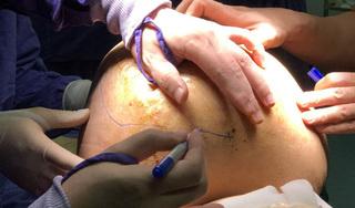 12 lần phẫu thuật cắt bỏ khối u thần kinh ra khỏi cơ thể người đàn ông