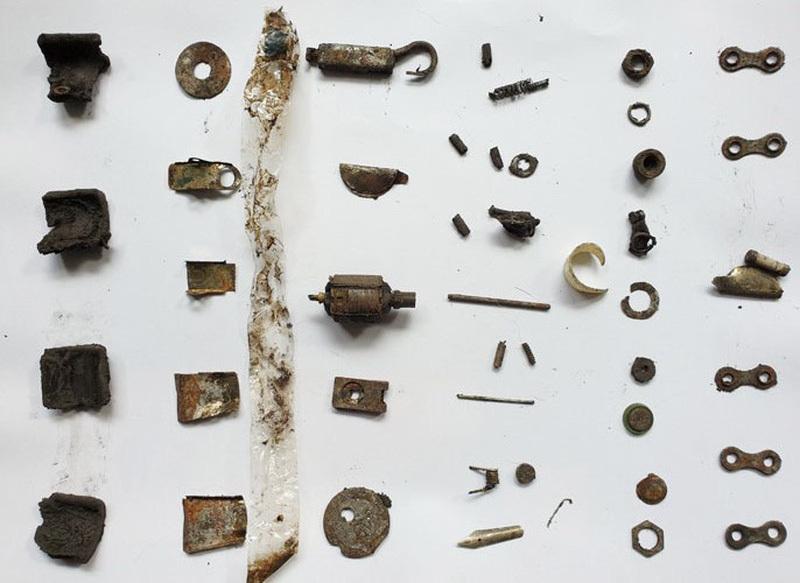 Khối dị vật kim loại hiếm gặp trong dạ dày người đàn ông