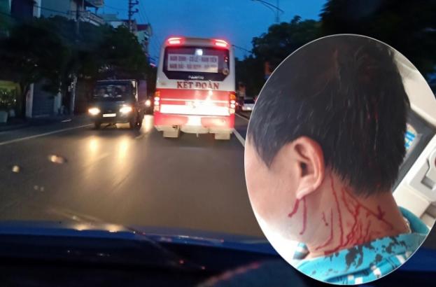 Nhóm người nhà xe Kết Đoàn thừa nhận đánh phụ xe khách toác đầu trên đường Giải Phóng