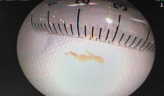 Bé 3 tuổi phải phẫu thuật lấy xương cá trong ruột