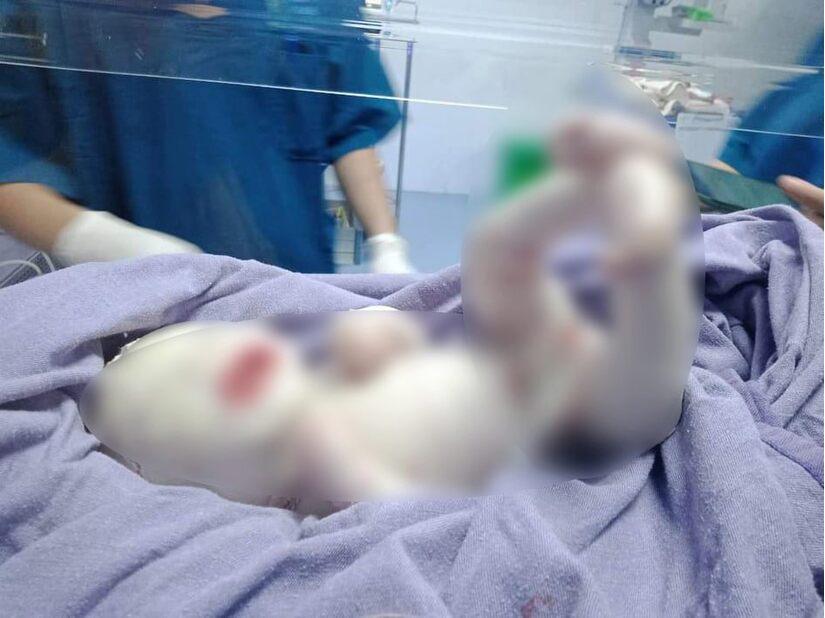 Em bé ở Quảng Ninh chào đời toàn thân phủ lớp sừng trắng, người đầy vết nứt