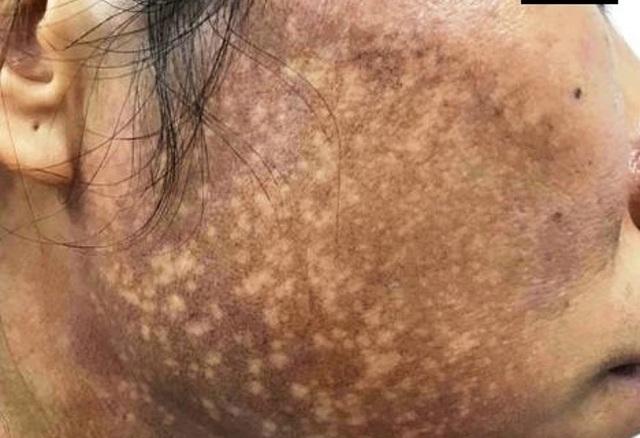 Da mặt người phụ nữ sưng ngứa, lốm đốm trắng đen sau bôi kem trộn làm trắn