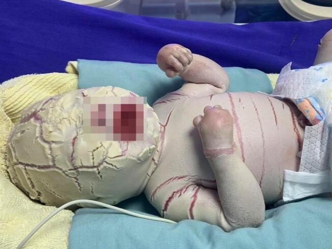 Da vảy cá - căn bệnh khiến em bé ở Quảng Ninh toàn thân phủ lớp sừng trắng