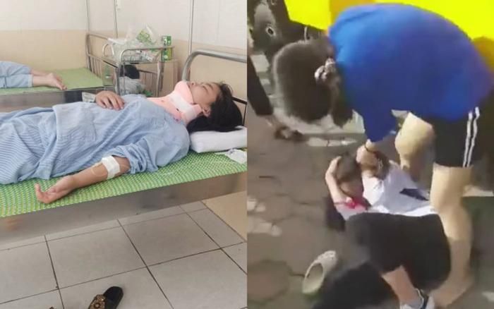 Điều tra vụ việc nữ sinh lớp 8 bị bạn đánh phải nhập viện ở Hà Nội