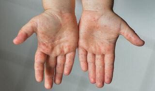 Long An ghi nhận gần 150 ca mắc tay chân miệng chỉ trong vòng 1 tuần