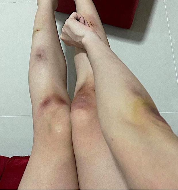 Thiều Bảo Trâm đăng ảnh tay chân bầm tím và chằng chịt vết thương khiến fan lo lắng