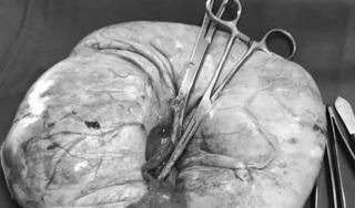 Mang khối u 'khủng' khiến bụng người phụ nữ to như mang thai 8 tháng