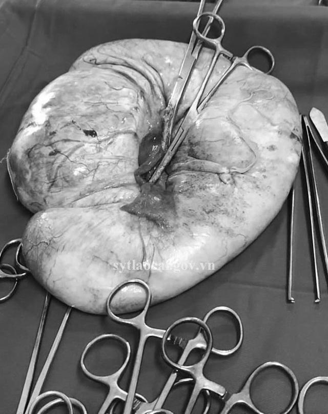 Khối u khủng khiến bụng người phụ nữ to như mang thai 8 tháng