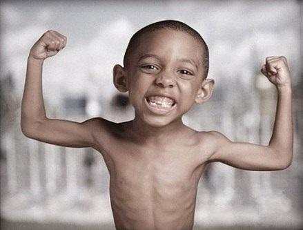 Khoảng 6,7 triệu trẻ em bị suy dinh dưỡng  trong năm 2020