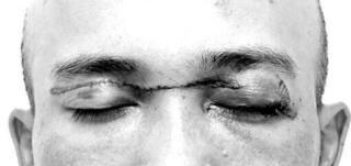 Người đàn ông suýt đứt rời mí mắt do vướng phải dây diều khi đi xe máy