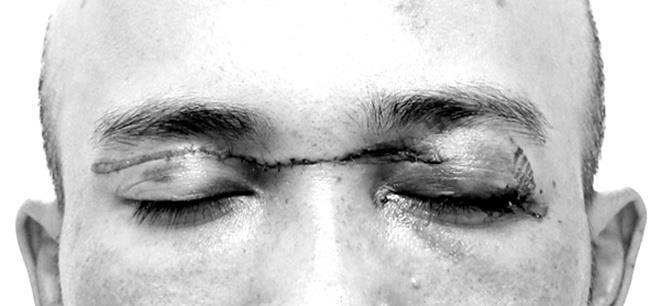 Người đàn ông suýt đứt lìa mí mắt do vướng phải dây diều khi đi xe máy