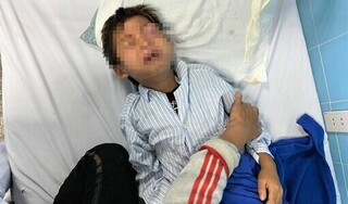 Bị cò mổ, bé trai 8 tuổi nguy cơ bị hỏng mắt