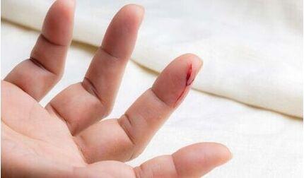 Chàng trai 21 năm mắc bệnh khiến máu chảy không ngừng: Dấu hiệu nhận biết của bệnh