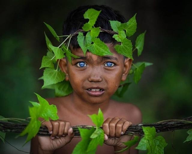 Hội chứng hiếm gặp khiến bé gái 4 tháng tuổi nghe kém, mắt chuyển xanh