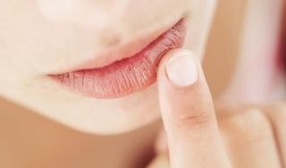 Dấu hiệu trên môi 'cảnh báo' những căn bệnh nguy hiểm