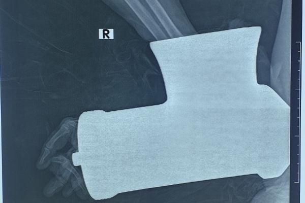 Toàn bộ tay phải người phụ nữ bị dập nát do bị cuốn vào máy xay thịt