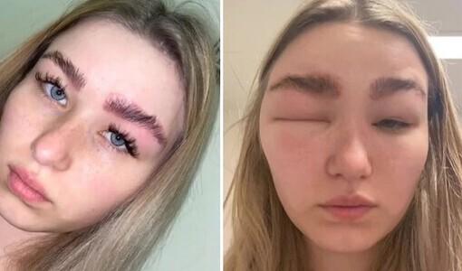 Cô gái bị dị ứng, sưng phù mặt sau khi đi duỗi lông mày