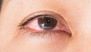 Nguy cơ thủng giác mạc do mắc bệnh quặm mi mắt bẩm sinh