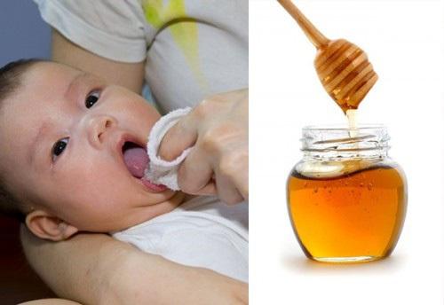 Bé 10 ngày tuổi tử vong vì dùng mật ong, điều chuyên gia cảnh báo đã lâu nhưng nhiều người vẫn mắc