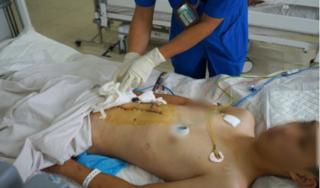 Nam thanh niên sốc mất máu, vỡ gan phức tạp sau tai nạn giao thông