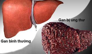 Ung thư gan rất thích 4 kiểu người này, nên điều chỉnh ngay để phòng tránh