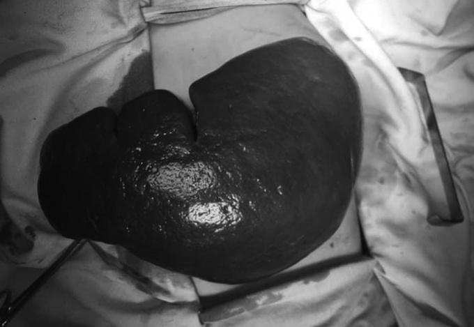 Căn bệnh bẩm sinh khiến lá lách của bé trai nặng hơn 3 kg