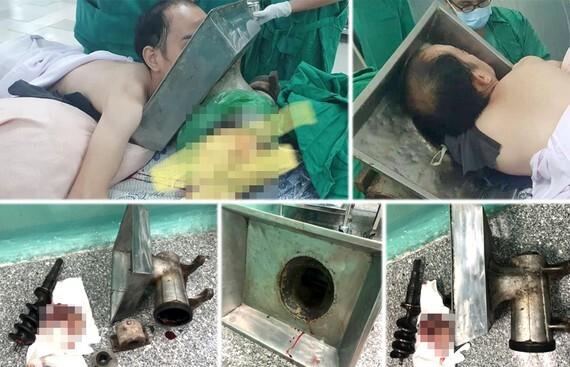 Nam thanh niên vác máy xay thịt còn kẹt cả cánh tay vào viện cấp cứu
