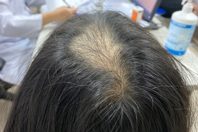 Bé gái 9 tuổi trụi đỉnh đầu do mắc hội chứng nghiện giật tóc