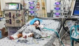 Hai bệnh nhi suy đa tạng, chảy máu liên tục so sốt xuất huyết