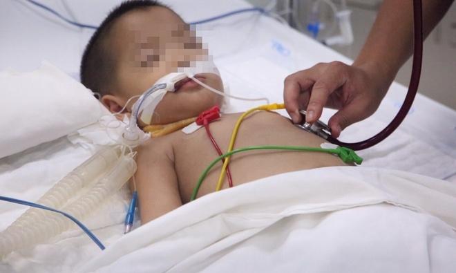 Bé trai 3 tuổi suy hô hấp, tổn thương não nặng do biến chứng tay chân miệng