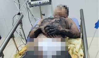Đốt cồn làm thí nghiệm tại nhà, bé trai 14 tuổi bị bỏng nặng