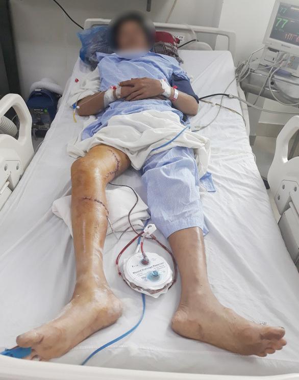Bị máy cưa chém, người đàn ông suýt mất chân phải