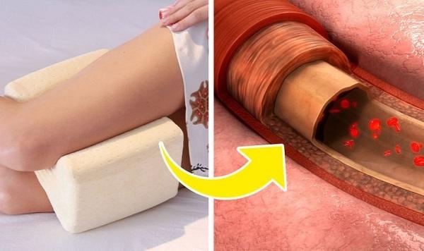 Tại sao nên kẹp một chiếc gối vào giữa hai chân khi ngủ