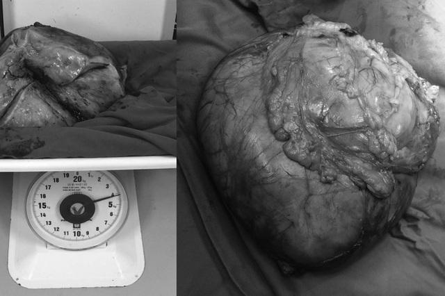 Khối u khổng lồ nặng hơn 4 kg nằm trong ổ bụng người phụ nữ