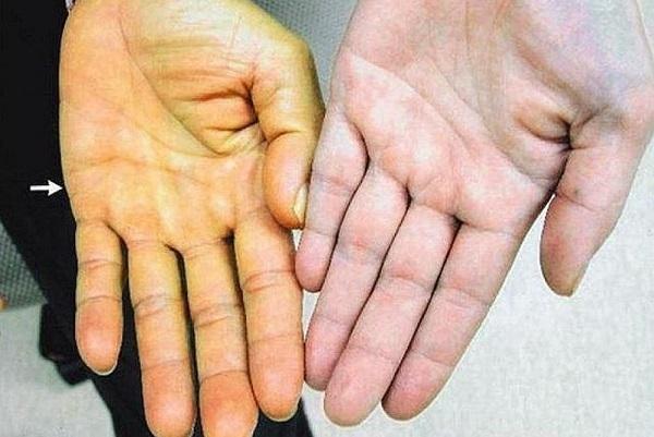 Nếu có dấu hiệu này trên da, bạn nên đi khám ung thư tuyến tụy ngay lập tức