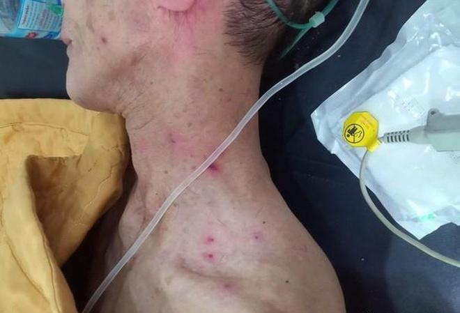 Hai cha con nhập viện cấp cứu do bị ong rừng đốt hàng trăm nốt trên cơ thể