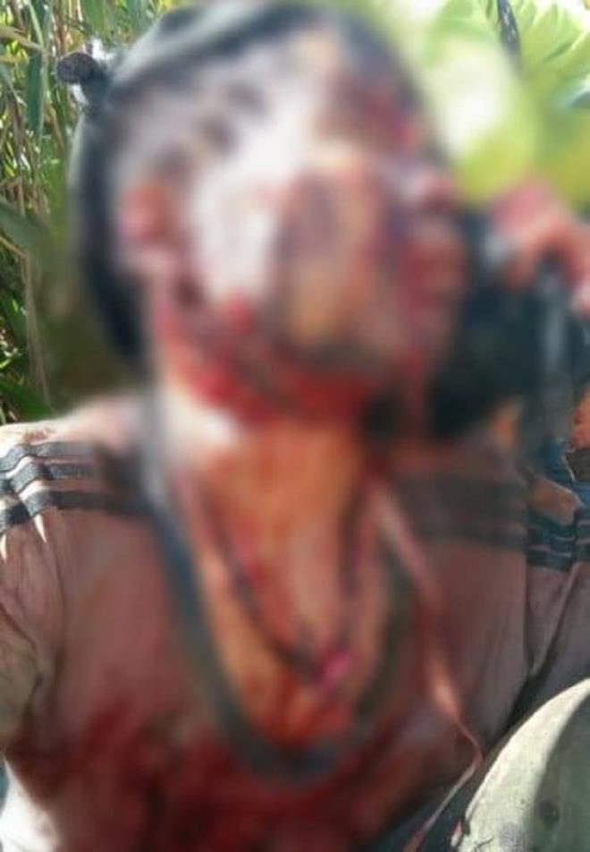 Người đàn ông ở Quảng Nam nguy kịch do bị gấu rừng tấn công