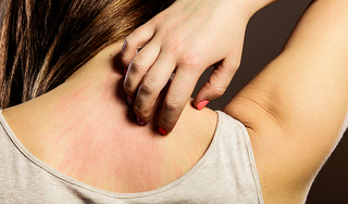 Đừng duy trì những thói quen này nếu bạn có làn da nhạy cảm
