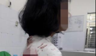 Nguyên nhân nữ sinh lớp 11 ở Đồng Nai bị đâm trọng thương