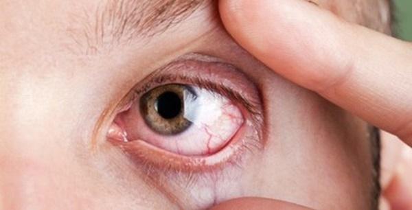 Vì sao lại đau mắt đỏ, điều trị thế nào