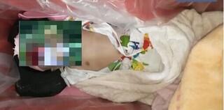 Sự thật bé gái 4 tháng tuổi vẫn còn thở được đưa đi hỏa táng