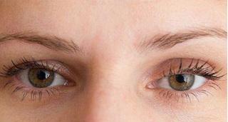 Sụp mí mắt: Nguyên nhân, tác hại, hướng điều trị an toàn không phải ai cũng biết