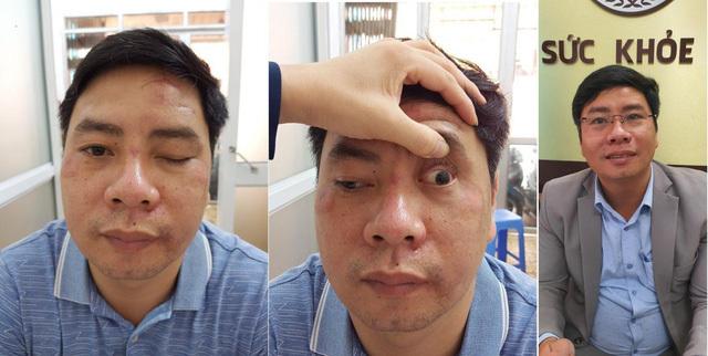 Sụp mí mắt, nguyên nhân, tác hại, hướng điều trị an toàn không phải ai cũng biết