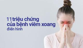 11 triệu chứng viêm xoang chớ nên coi thường