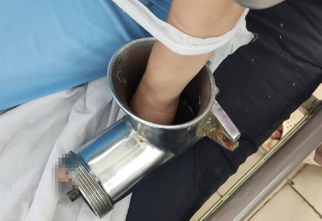 Nhân viên bếp ăn trường mầm non bị máy xay thịt nghiền nát bàn tay