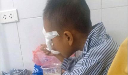 Học sinh lớp 1 nghi bị bạn ném bi sắt vào mắt gây tổn thương nặng