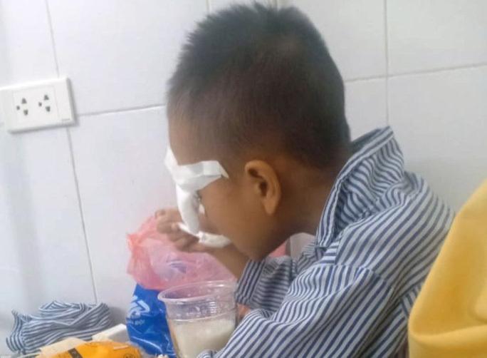 Nam sinh lớp 1 ở Thanh Hóa bị bạn ném bi sắt vào mắt gây tổn thương nặng
